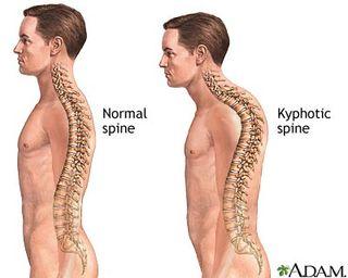 Kyphosis