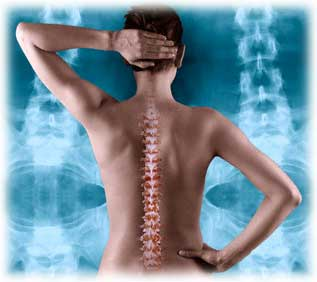Posture chiropractor in san francisco