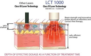 LLCT 1000 deep tissue laser SF