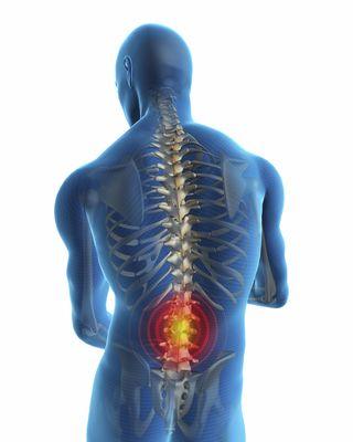 San Francisco Chiropractor Posture Awareness Week