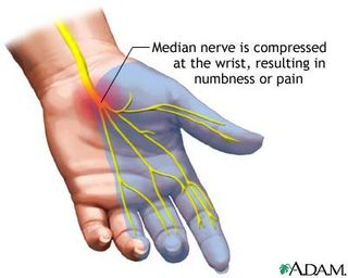 Carpal tunnel doctors san francisco