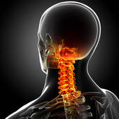 Chronic neck pain treatment san francisco