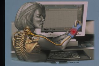 Carpal Tunnel Syndrome Doctor in San Francisco