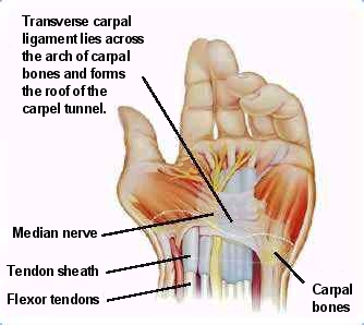 Carpal tunnel chiropractic or surgery