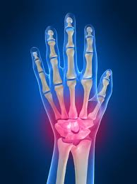 Carpal tunnel syndrome clinic san francisco