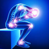 Fibromyalgia experts san francisco CA