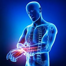 Carpal tunnel syndrome doctor san francisco